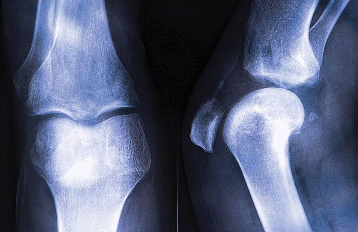 X-Ray of bones