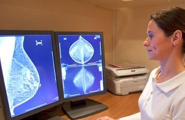 Radiology technician examing mammography test