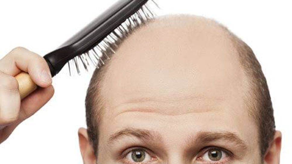 Man with bald head
