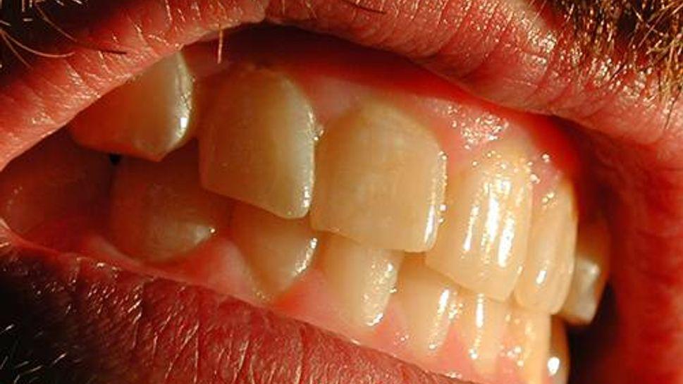Man gritting teeth