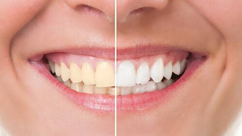 Pre and post teeth whitening