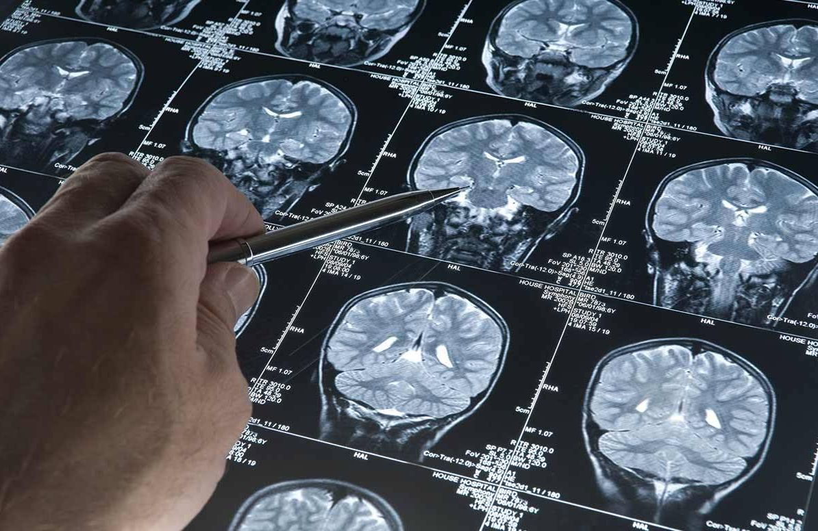 Reviewing Alzheimer's brain scan