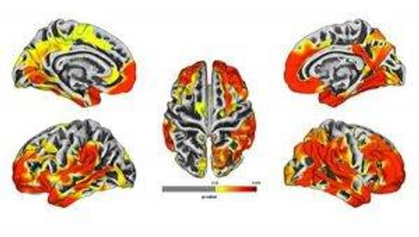 The brain images are a compilation of MRI results of 9/11 responders. The images show gray matter atrophy on the brain with yellow and red areas revealing statistically significant atrophy compared to the normal population. Red areas show worse atrophy than yellow.