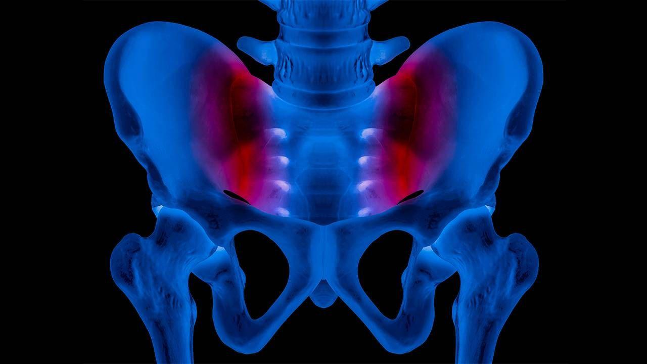 An Xray of a human pelvis highlighting the sacroliliac joint. Next Avenue, lower back pain